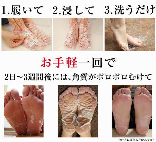1.履いて 2.浸して 3.洗うだけ お手軽一回で2日~3週間後には、角質がポロポロむけて むけ方には個人差があります